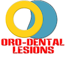 Oro Dental Lesions