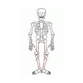 Bone angulation
