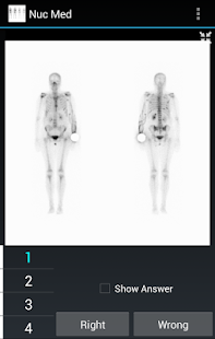 Radiology Flashcards: Nuc Med- screenshot thumbnail