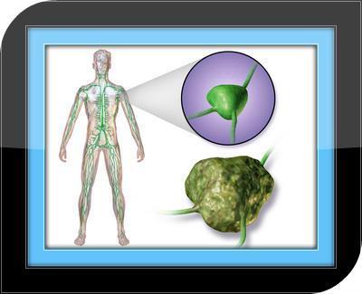 Lymphoma Symptoms - Guide