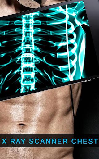 X射线扫描仪胸部
